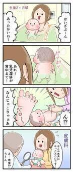 なにこれ水虫!?生後2か月の息子をおそった謎の症状