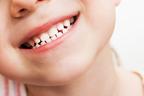 《先輩ママに聞いた、歯医者さんデビューはいつから?》子どもの仕上げ磨きのポイント4つ!