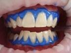 「自然な白い歯」を保てるセルフホワイトニングとは【百木ゆう子】