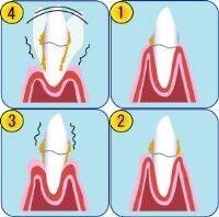 20代の75%が歯周病 歯科医が教える歯周病セルフチェック法
