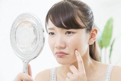美容皮膚科医が教える! ストレスニキビの治し方