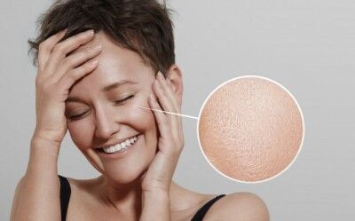 皮膚科医に聞く! 毛穴の開きの原因と改善策