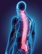 【医師取材】脊柱管狭窄症の原因・症状・ケアは? 授乳中は要注意!