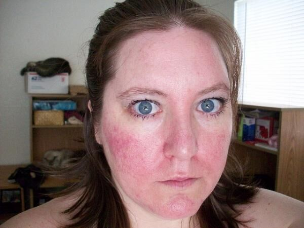 私がヒドイ乾燥と赤ら顔から卒業できたのはこの美容法のおかげ!