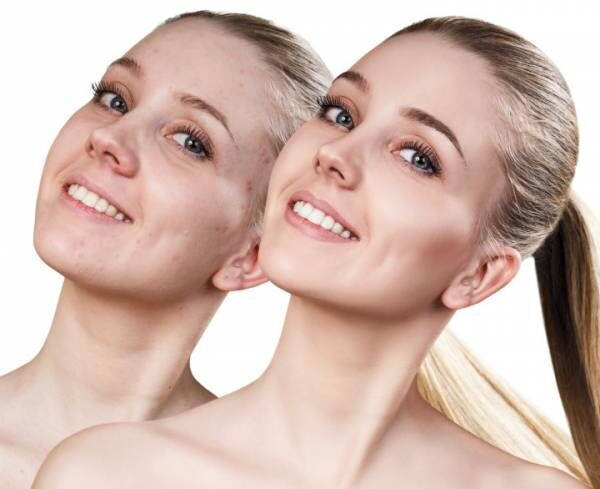 Happy young woman before and after retouch.