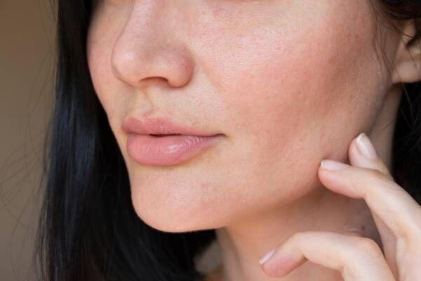 30代以降の肌とたるみ毛穴について