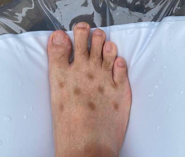 足に謎の斑点ができた男性 判明したまさかの原因とは? 「笑った」「同じ経験ある」