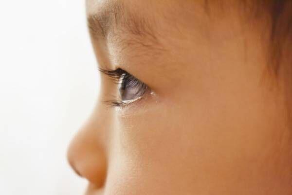 アスペルガー症候群とADHDは両方とも発達障害。特徴と違いを紹介