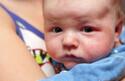 アトピーの可能性もアリ?「乳児脂漏性湿疹」と他の病気の違い