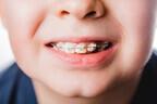 【矯正するならいつから?費用は】子どもの歯並びが悪くなる原因と3つの予防法