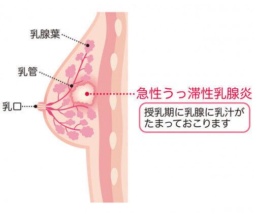 授乳が辛い!症状で分かる「乳腺炎」の種類と対処法