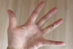 手の甲のホクロは腸の不調のサイン…お血でわかる病気のサイン