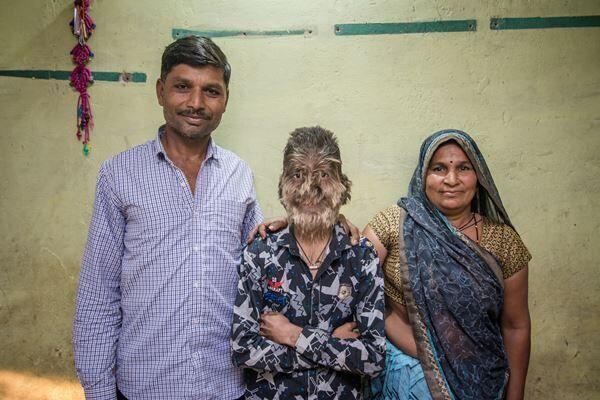 インドの狼男症候群の少年(写真:Barcroft Media/アフロ)