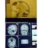 脳炎から認知症になる可能性も 専門家危惧するコロナ後遺症