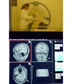 脳炎により認知症発症のリスクもあるという(撮影:共同通信)