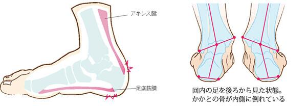 ランニング&ウォーキングの足の痛み、今度こそ解消!