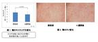 コーセー、「ハトムギエキス」の摂取が肌の透明度アップに効果的と発表