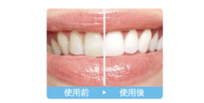 ホワイトデーのギフトに! 機能性とデザイン性を両立する電動歯ブラシ「ソニッケアー ダイヤモンドクリーンシリーズ」