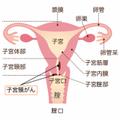 【産婦人科医監修】子育て世代は要チェック、マザーキラー(子宮頸がん)とは?自覚症状はある?子宮頸がん検診の内容と注意点について