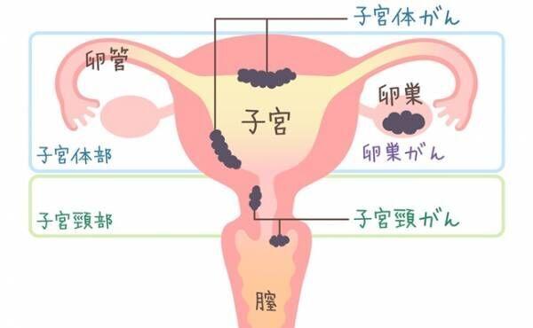 「健診を受けたのに!?」死亡率の高い卵巣がん。自覚症状や原因は?【医師監修】