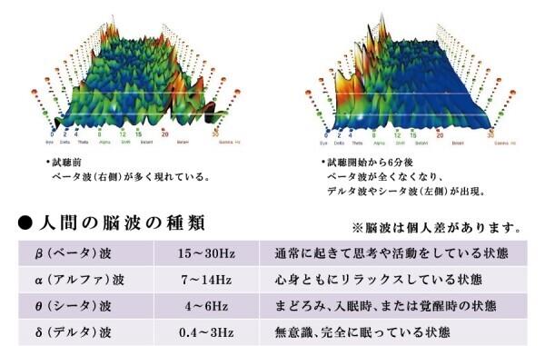 脳波データ
