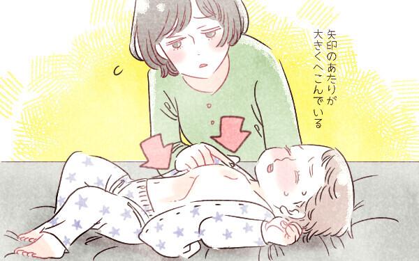 【医師監修】赤ちゃんが重症化しやすいRSウイルス感染「せき・鼻水がとまらない…」<パパ小児科医の子ども健康事典 第11話>