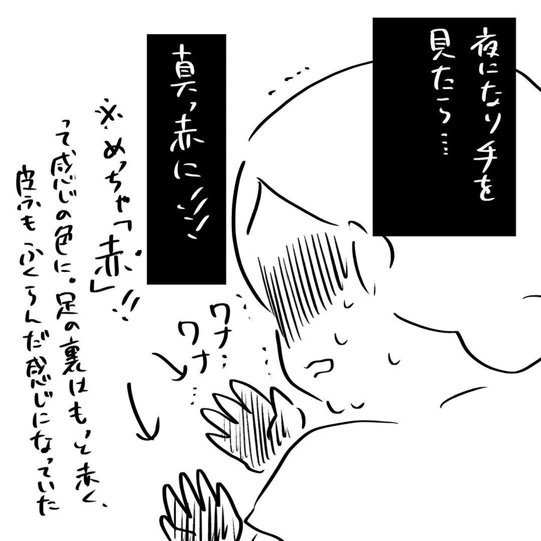 【激しい体調悪化】手の赤み・かゆみ・曲げられないほどの関節痛… 一体どうなっているの⁉【4人目と5人目の話  Vol.16】