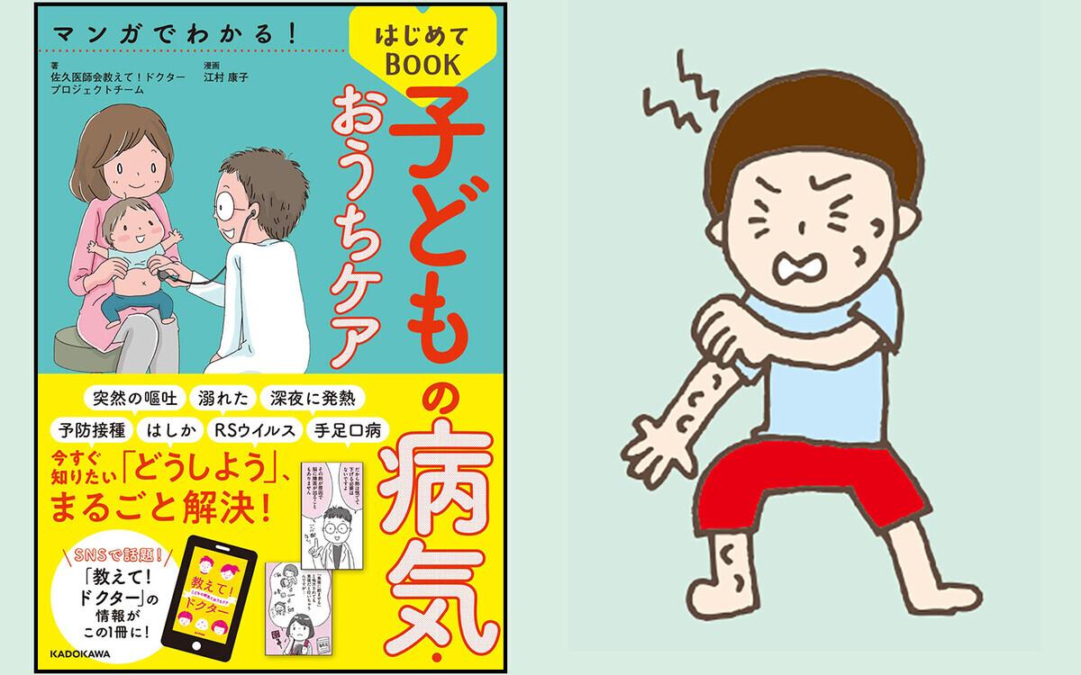 【医師監修】虫刺されは小さい子ほど要注意! 虫よけ剤、かゆみ止めの正しい対処法【子どもの「病気・けが」教えて!ドクター 第4回】
