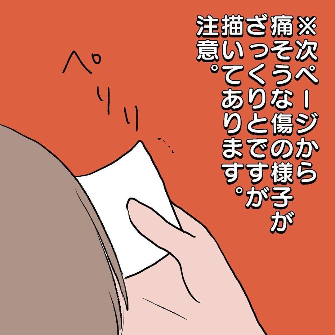 通院後、傷の状態はいかに? 再処置を迷う母の最後の切り札【初めての子どもの大けが Vol.9】