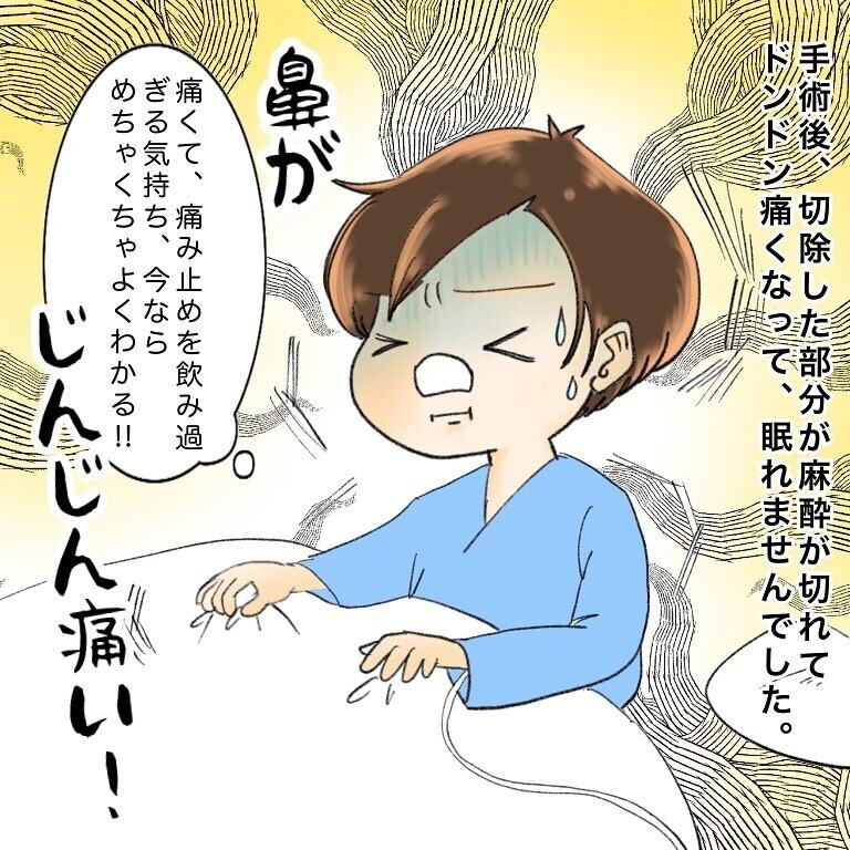 痛い! 痛すぎる! 麻酔が切れ、切除した部分が痛んで眠れない!【鼻腔ガンになった話 Vol.56】