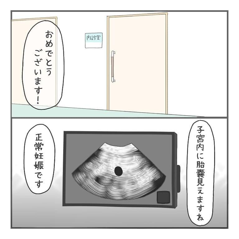 胎嚢は確認できたけれど…心拍確認を前に、辛い記憶が蘇る【大事な我が子を産むまで Vol.19】