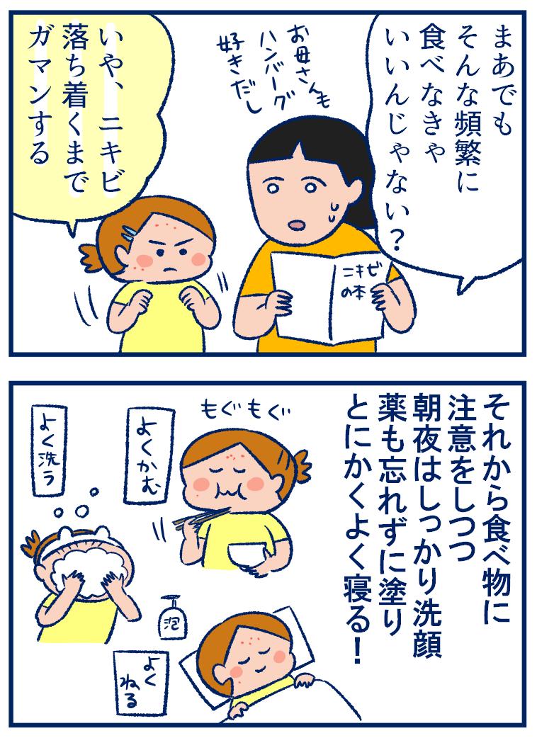 小学生のニキビ対策で大事なこととは? 娘の生活ぶりを見て学んだこと【双子を授かっちゃいましたヨ☆ 第243話】